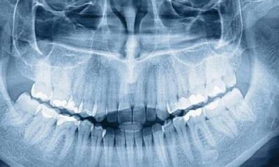 особенности внутриротовой рентгенографии