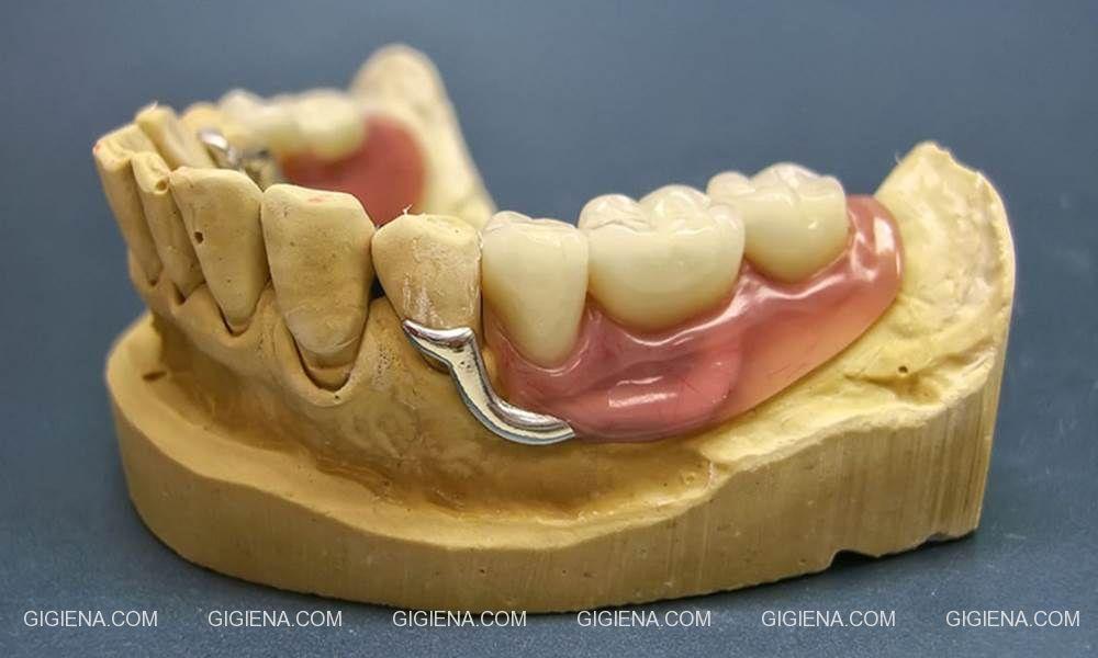 бюгельное протезирование зубов