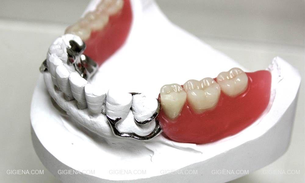 кламмер бюгельное протезирование зубов