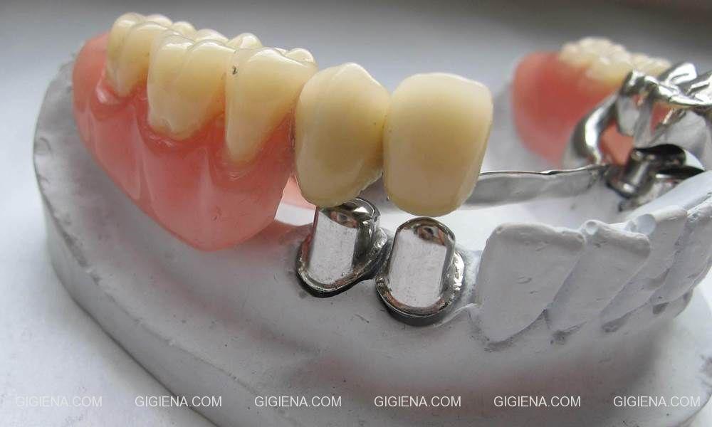 телескопические протезы бюгельное протезирование зубов