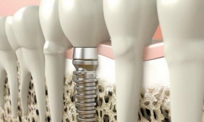 дентальная имплантация