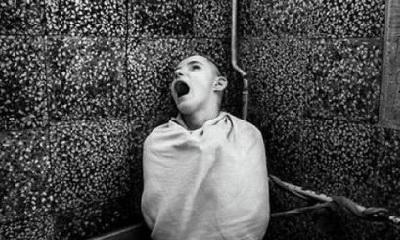 картина нервно-психических нарушений