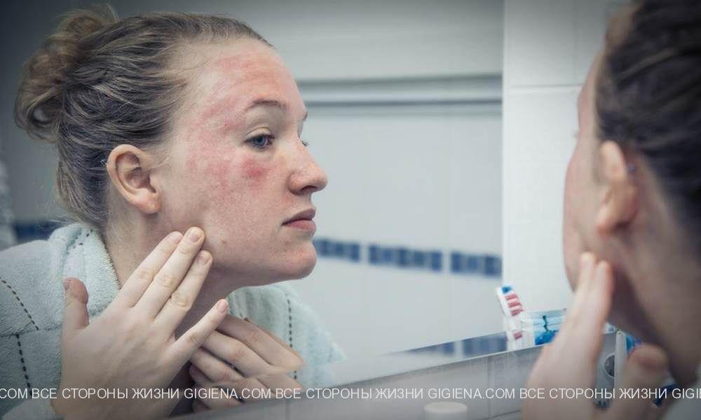 дерматовенеролог кожа лицо